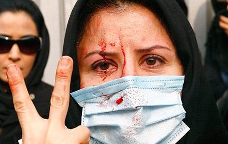 زنی زجر دیده، برای گرفتن حقوق ازدست رفته خود، این چنین مجروح و خون آلود می شود