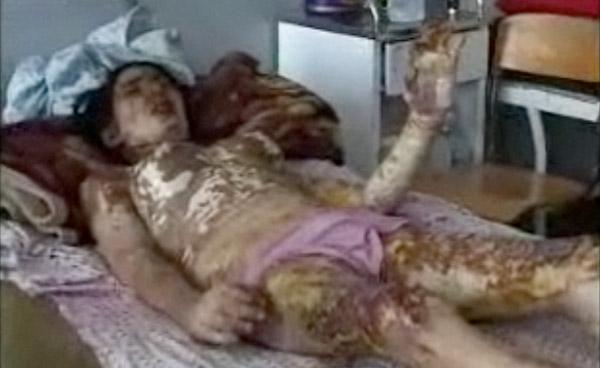 زن ستیزی در اسلام موضوع امروزو دیروز، و یا این کشور و آن کشور نیست. وقتی اسلام به مرد اجازه مه دهد ۴ زن عقدی و صدها صیغه ای داشته باشد، به او اجازه می زند که زن خود را به آتش بکشد، و ناقص و مجروح سازد. سی