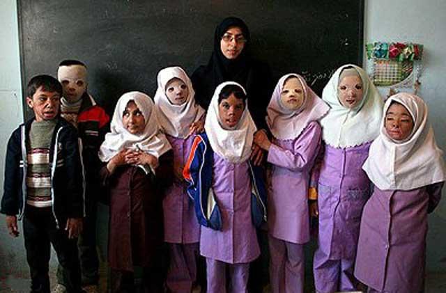 اینها قربانیان مدرسه آخوندند که در زمستان و در کلاس سرد به ناچار از بخاری نفتی استفاده نمودند. کار آخوند فقط مسجد ساختن، یعنی کارخانه خر سازی است و بس.