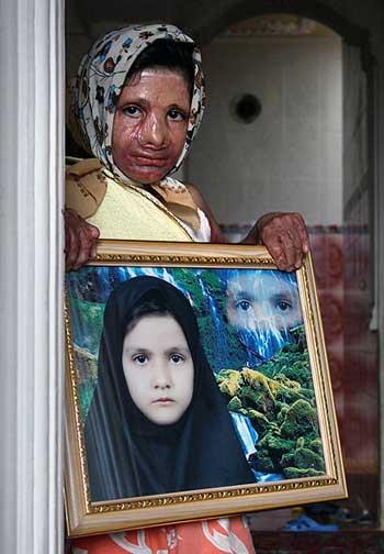 فرتور ثمانه عظیمی، دختر بچه بینوایی را نشان می دهد که به خاطر آتش سوزی در کلاس مدرسه اش، در روستای درودزن مرودشت از توابع شیراز، سوخته و زیبایی و سلامتش را از دست داده است. روستاییان از داشتن مدارس امن و استاندارد نیز محرومند.