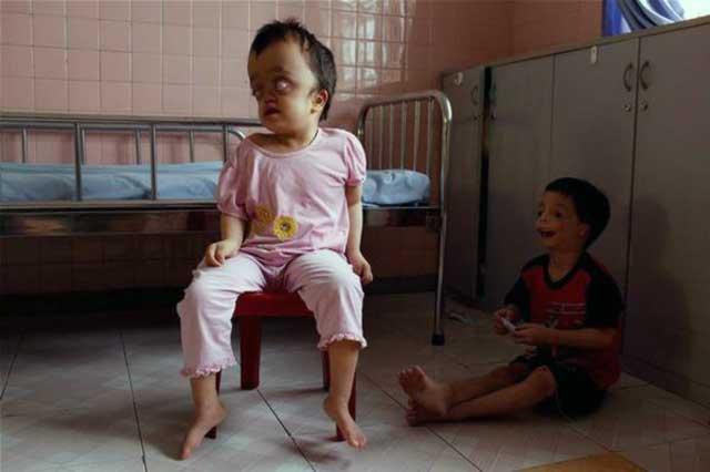 فرتور اثرات دلخراش سلاح های شیمیایی بر روی کودکان را نشان می دهد، حال اگر سایت پارچین منهدم شده و آن همه مواد شیمیایی خطرناک در هوا پخش شود، چه بلایی بر سر مردم ایران خواهد آمد؟