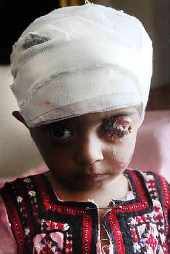 یلدا ی بینوا، قربانی دیگری است که رژیم اسلامی و مسئولین بی کفایتش سلامتی اش را از وی گرفته اند؛ وی به دلیل تزریق اشتباه واکسن، تا کنون یک چشمش را از دست داده و در رنج و عذاب به سر می برد.