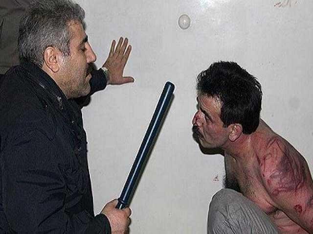 گوشه ای از جنایات بیشمار شکنجه گران حکومت اسلامی که پلیس و نیروی انتظامی نامیده می شوند.
