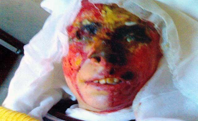 تصویر دیگری از چهره سوخته طاهره قربانی هوسبازی شوهرش و عشقبازی او با مونا