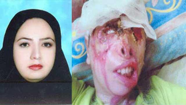 طاهره قربانی اسید پاشی زنی هوسباز به نام مونا که با شوهرش جعفر روبط سری و پشت پرده داشتند.