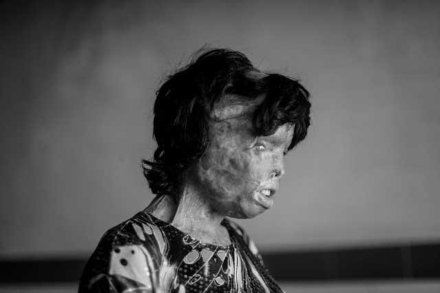 ثمیه مهری، قربانی زن ستیزی اسلام و دیوانگی هیولایی به نام شوهر- کسی که چشم راست خود را به کلی از دست داده، صورت، ابرو، بینی، و بخش بزرگی از تن او سوخته و از میان رفته است. برای بینایی چشم چپ هم که امید چندانی به بهبودی آن نخواهد بود.