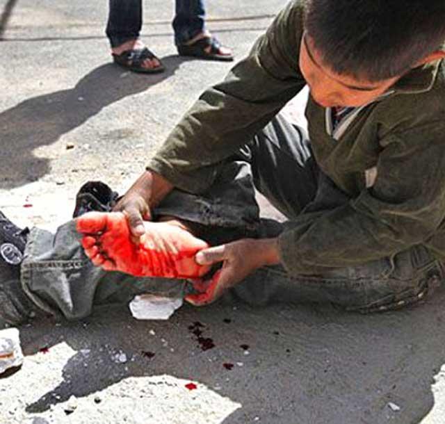 این یک کودک کار در ایران است. زخمی و آش و لاش شده. آیا رنج و درد این نوباوگان میهن نتیجه دزدی ها و بی خبری آخوند ضد انسان و گداپرور نیست؟.