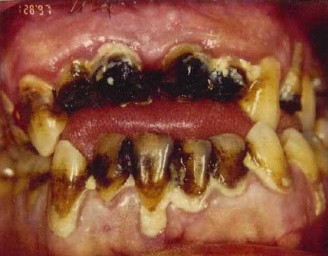 نوشیدن مواد گاز دار و شیرین، مراقبت نکردن، و نزد دندان پزشک نرفتن، پیامدی جز پوسیدگی و فساد دندان ها نخواهد داشت.  و این خود آمادگی بدن برای پذیرفتن انواع بیماری ها است.