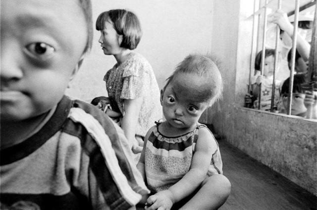 پیامد بمب های شیمیایی آمریکا بر روی مردم بی دفاع ویتنام به هم خوردن و دگرگونی جسم و روان مادران است که چنین فرزندان ناسالم و با اندامی نا موزون به وجود می آورند.