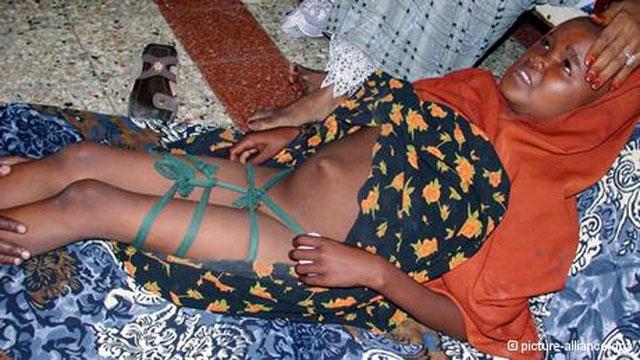این فرتور ختنه یک دختر سومالیایی است. شاید در شگفت بمانید که این ختنه در سوئیس انجام پذیرفت، و پدر و مادر دختر در دادگاه به دو سال زندان محکوم شدند.
