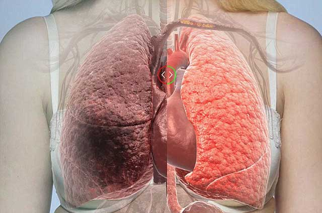 سرطان شش ها رایج ترین و یکی از درمان ناپذیر ترین نوع سرطان هاست که بر اثر کشیدن سیگار به وجود می آید . زیرا گاز سمی مون کربنیک (اکسید دوکربن) درون حفره های شش ها باقی میماند و مانع رسیدن اکسیژن به لابلای سلول های شش می گردد.