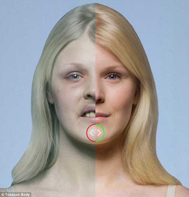 در این فرتور تفاوت میان چهره یک فرد سالم و یک سیگاری به خوبی دیده می شود. پیامد سیگار کشیدن به دلیل اختلال و نارسایی در جریان خون، قدرت دفاعی بدن کاهش می یابد و بیماری های پوستی و لکه لکه شدن صورت را  را به دنبال خواهد داشت.