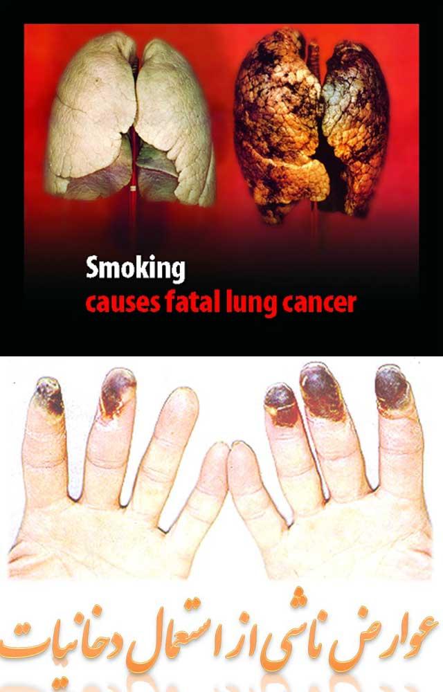 در این دو فرتور آسیب هایی که با به کار برد سیگار و دیگر دخانیات در شش ها و انگشتان به وجود می آید نشان می دهد.