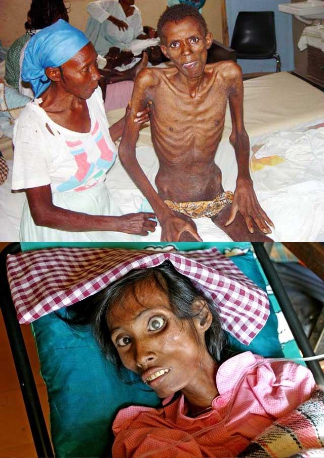 این دو تصویر قربانیان ایدز را نشان می دهد. این بیماری رفته رفته بدن را نرم، لاغر، و آب می کند تا آنجا که پوستی بیشتر بر تن نمی ماند.