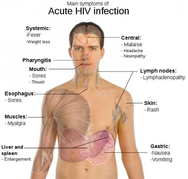 در این تصویر علامت و نشانه های بیماری ایدز در حالت وخیم آن در شخص دیده می شود که عبارند از: سردرد، کاهش وزن، زخم و خارش دهان، حالت دل به هم خوردگی و تهوع،  بزرگ شدن جگر، خارش پوست و عوارضی دیگر.