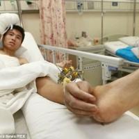 در این تصویر دست پیوند خورده به مچ پا را می بینید. این پیوند تا یکماه به همین حال باقی بود تا بیمار سلامت. جسمی خود را بازیافت و آماده برای پیوند دوباره آن به دست جدا شده گردید