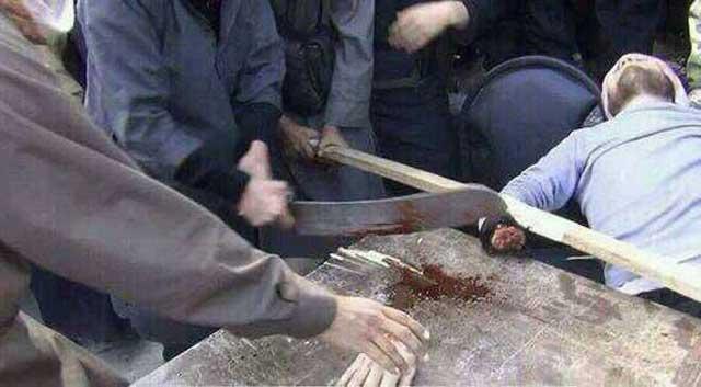 مرگ جوان پس از آن که دستش را بریدند. اینهم از شریعت و عدالت اسلامی است که هم اکنون در سوریه به اجراء در می آید.