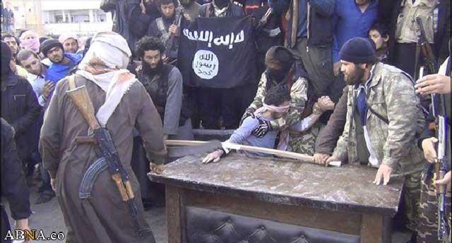 گروه داعش در سوریه و عراق جنایات بیشماری را بنام اسلام و با قانون شریعت اجراء کردند. در این فرتور قطع دست یک فرد را نشان می دهد.