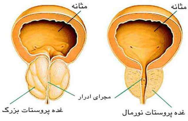 سرطان پروستات یکی از متداول ترین سرطان های مردان است.