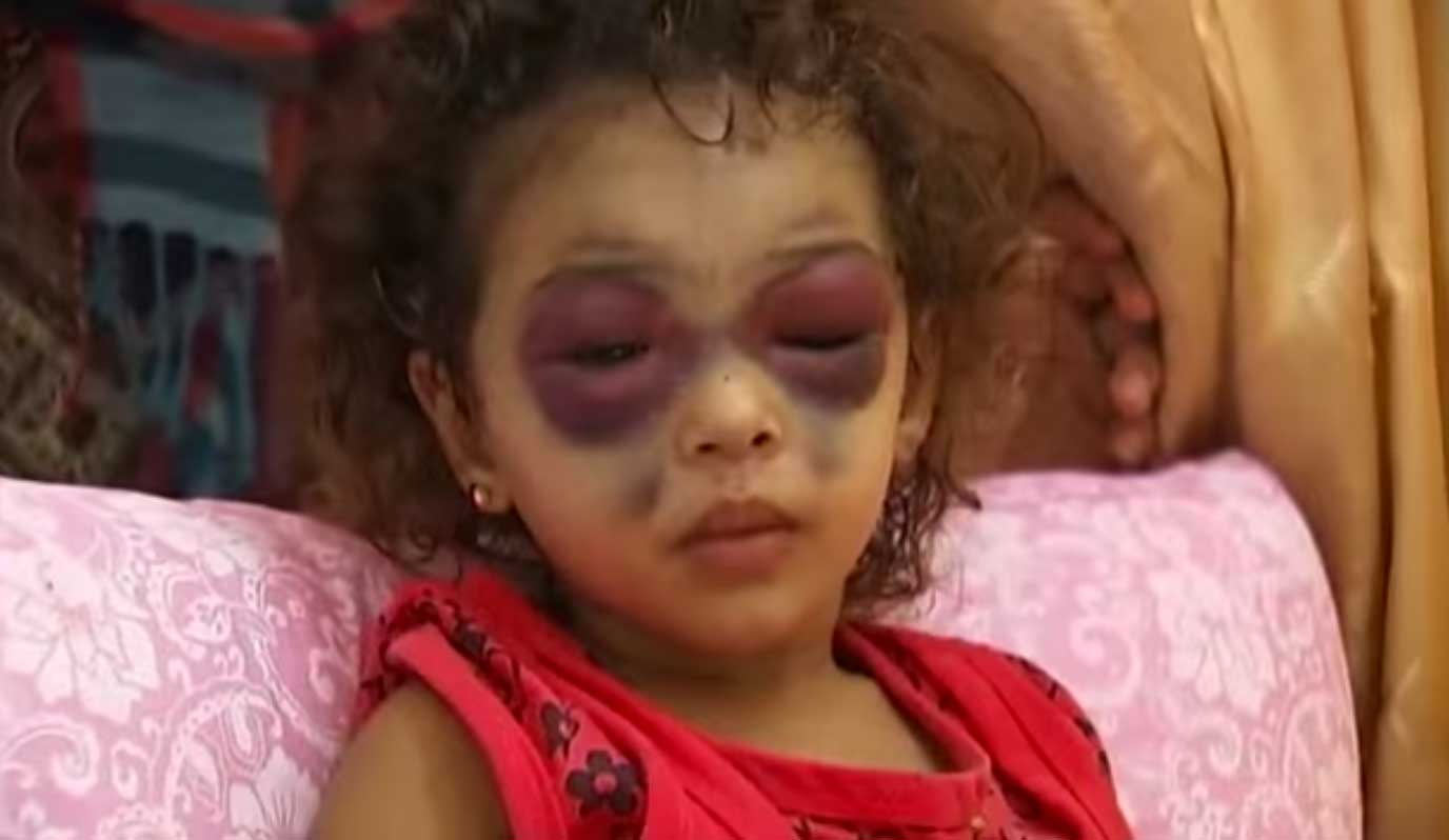 gaza-child-panda-eyes-israel-genocide