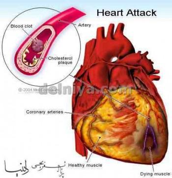 در این تصویر می بینیم که چگونه رگهای تغذیه کننده قلب بر اثر جمع شدن چربی مسدود شده جریان خون قطٰع می شود و سکته که با از بین رفتن بخشی و یا همه دیواره قلب همراه است پدید می آورد.