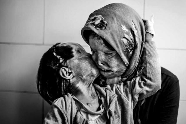 مادر و فرزندی که مورد حمله اسید پاشی قرار گرفته و زندگی و هستی اشان از میان رفته است.