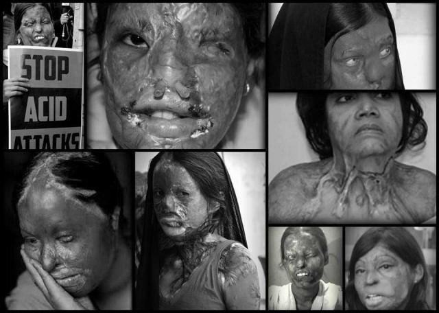 زنانی که در کشورهای اسلامی قربانی اسید پاشی انسان نماهای جنایتکار شده اند.